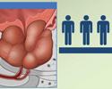 Benign prostate hyperplasia (BPH) cause and symptoms